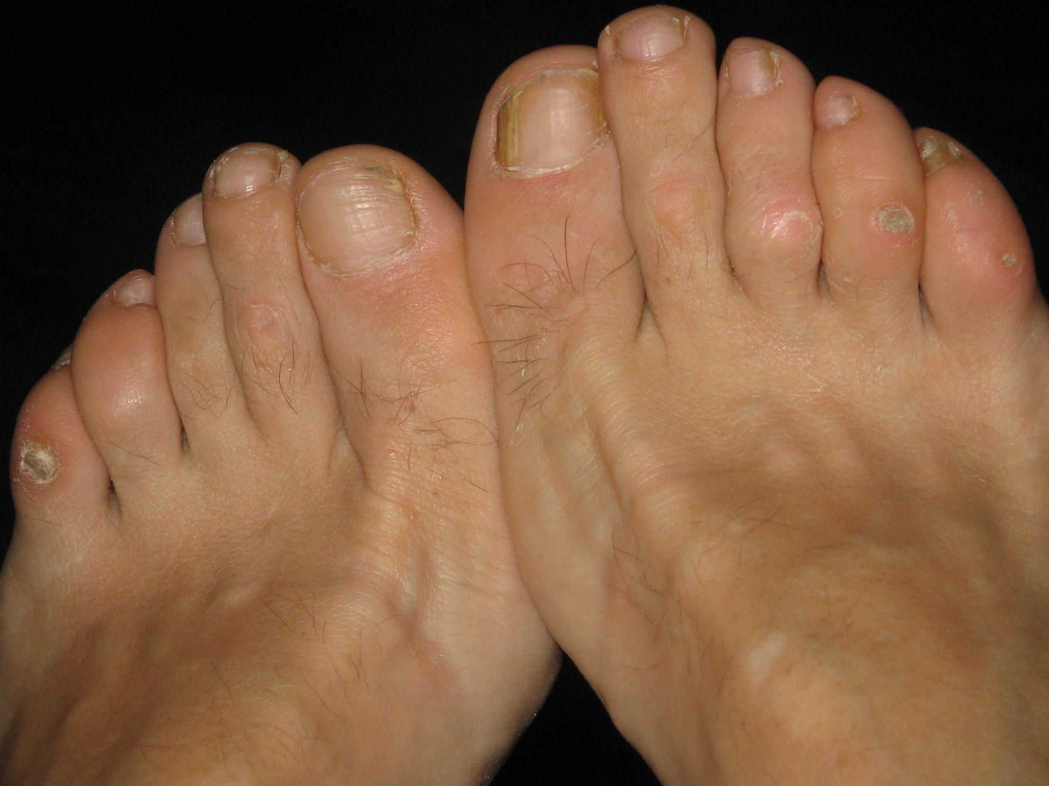 Corns, Calluses & Warts on Feet
