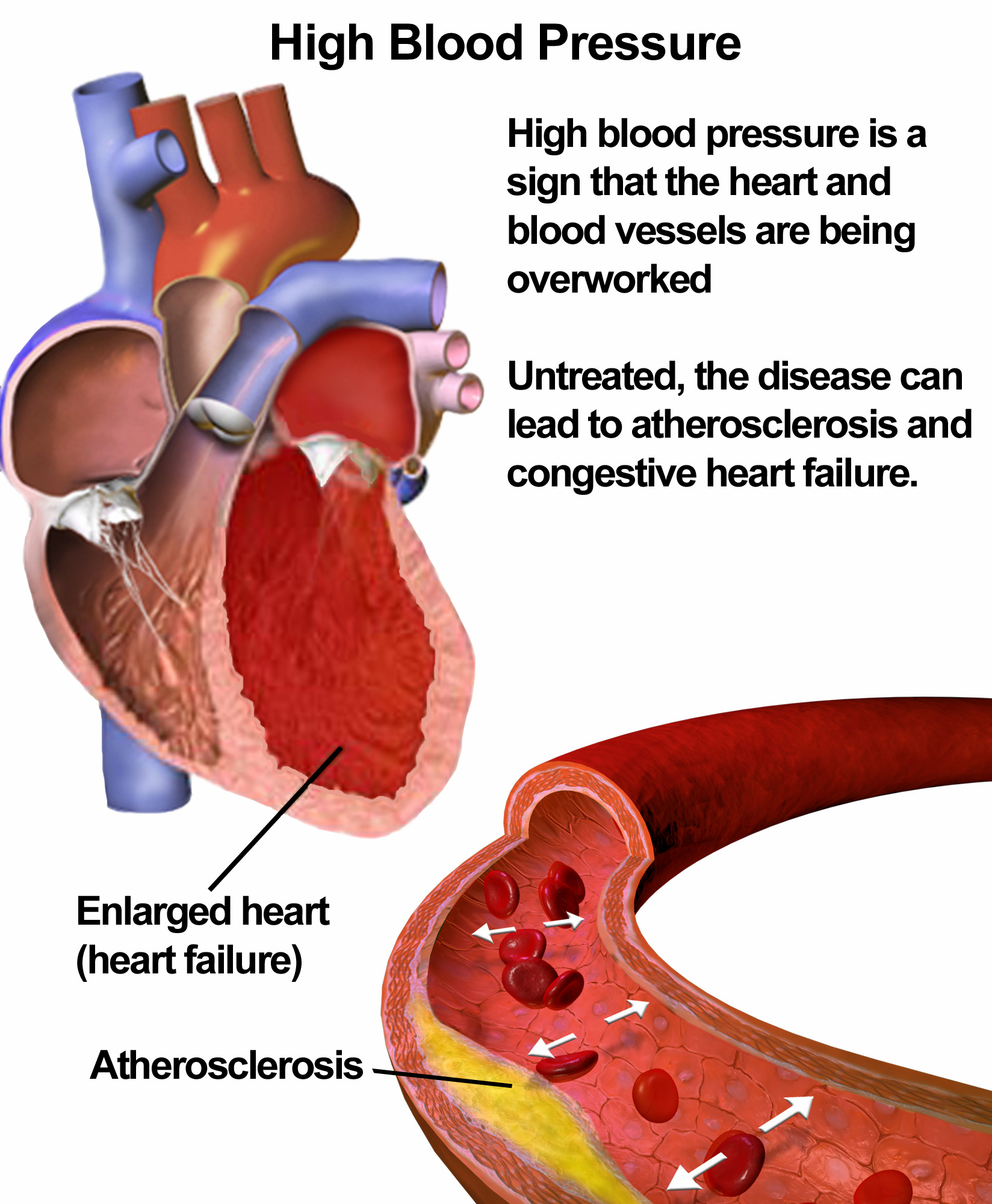 High blood pressure or hypertension nvjuhfo Gallery