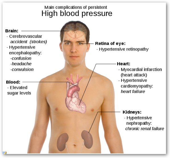 High Blood Pressure Symptoms And Hypertension Causes