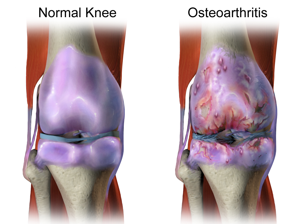 normal tramadol dosage for osteoarthritis