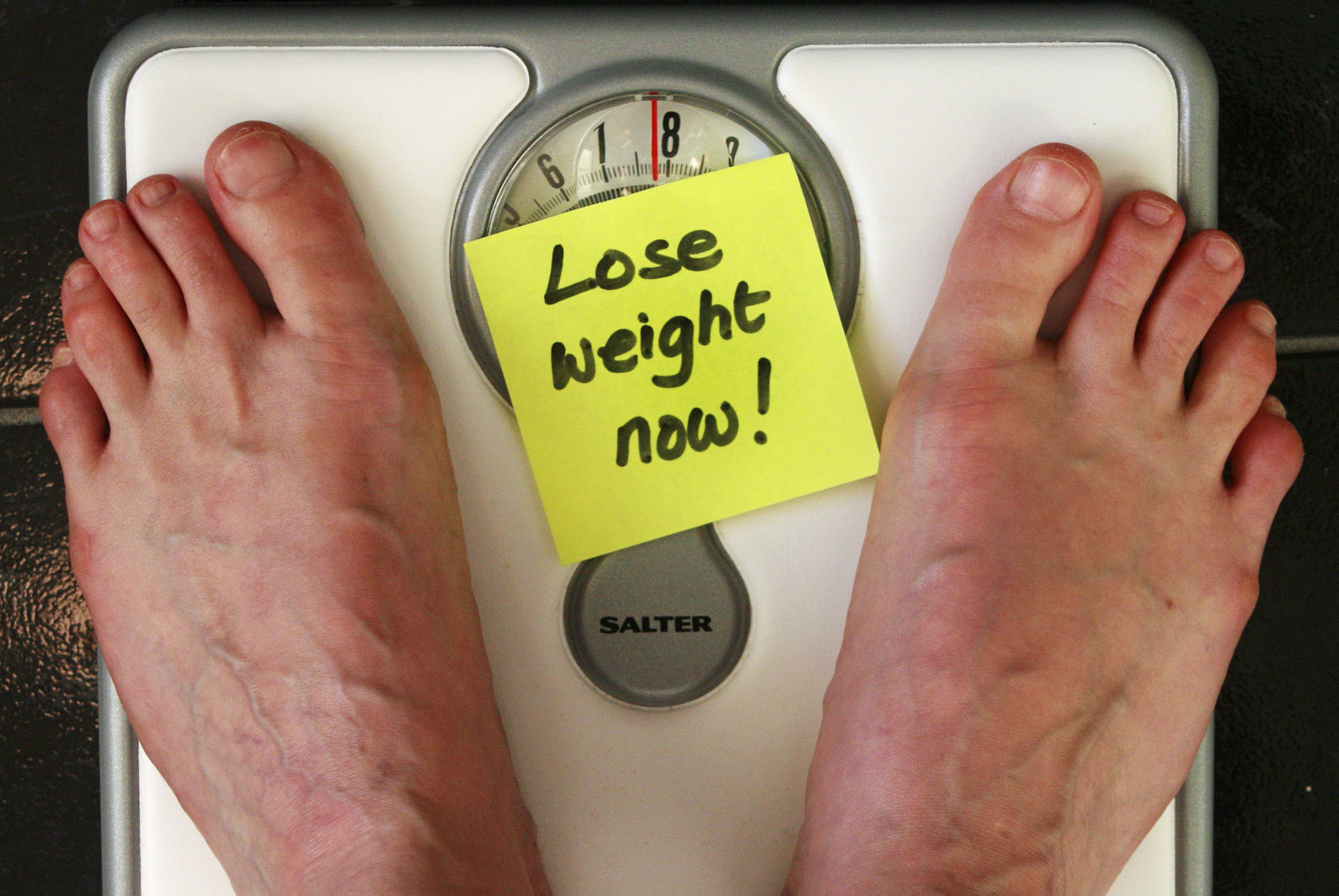 Obesity how to lose weight wisely the ccuart Image collections